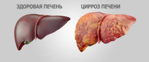 Заговор от цирроза печени