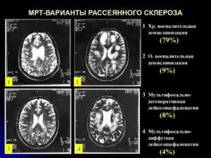 Заговор от рассеянного склероза