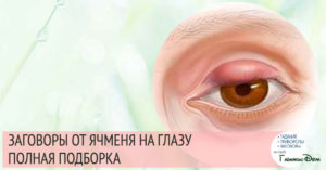 Сильный заговор от болезни глаз и мешков под глазами, 2 заговора