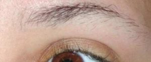 Заговор от глаукомы