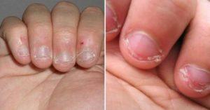 Заговор чтобы не грызть ногти, 3 заговора