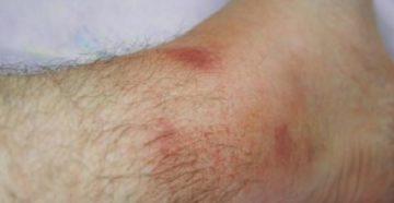 Сильный заговор от рожистого воспаления на ноге, лечим рожу за 13 дней